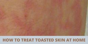 how to treat toasted skin syndrome at home