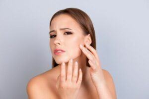 Can Retinol Make Skin Worse_dryness